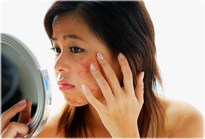 getty_rf_photo_of_asian_woman_with_acne